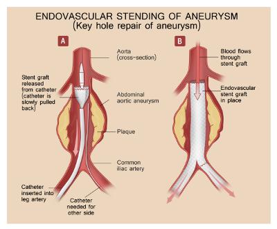 Aortic Aneurysm Surgery In Kerala | Heart and Aorta